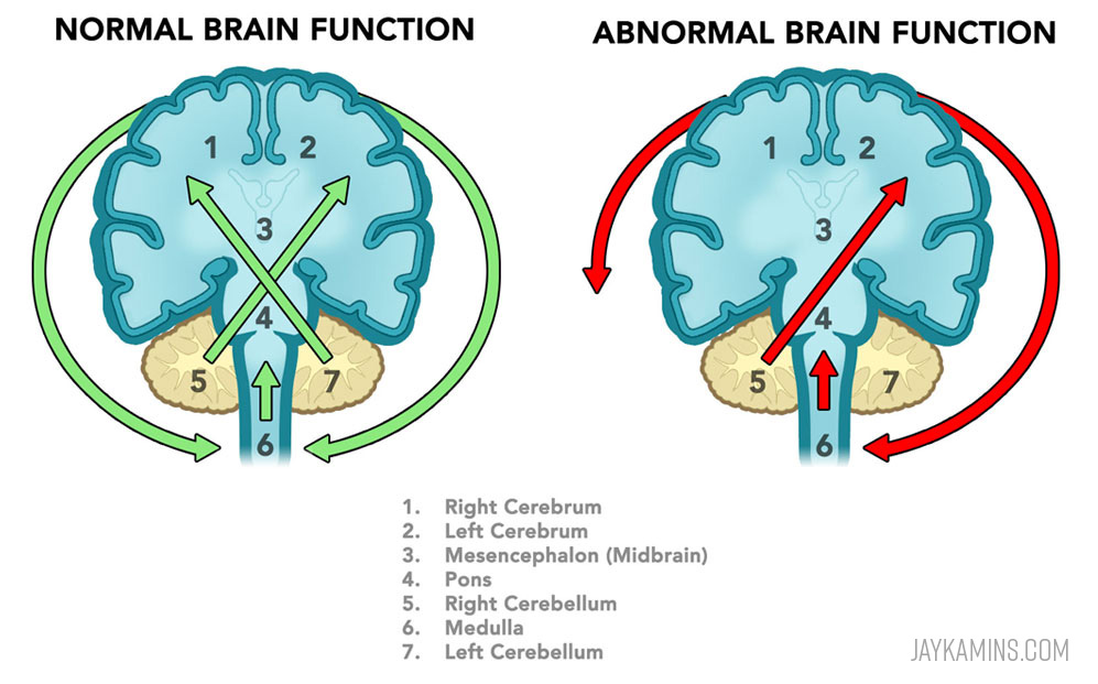 Normal and adnormal brain function.